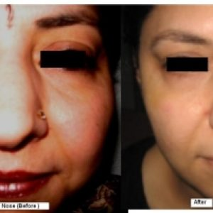 Broad Nose Rhinoplasty Before-After