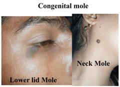 Congenital mole
