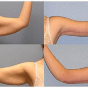 Arm Shaping Brachioplast Surgery