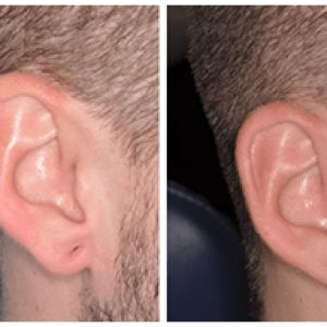 Ear Lobule Repair