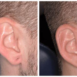 Ear Lobule Repair
