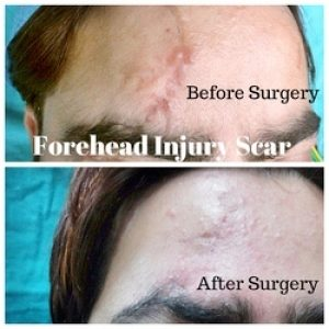 injury scar before after