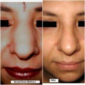 Broad Nose Rhinoplasty Surgery In Delhi