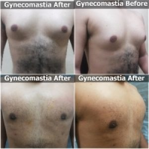 Gynecomastia Surgery Before After