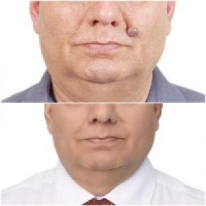 Mole Removal Before After