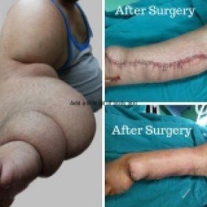 bulky arm treatment