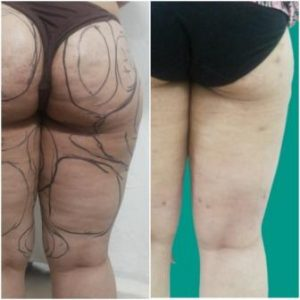 Thigh lift surgery before after