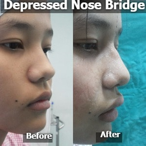 Depressed Nose Bridge