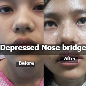 Depressed Nose Bridge Surgery