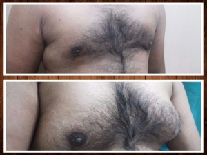 Optimized-Gynaecomastia  before after (1)