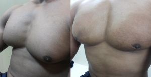 before after Gynaecomastia