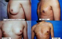 one side gynecomastia